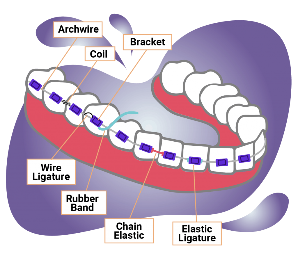 graphic labeled with different parts of braces