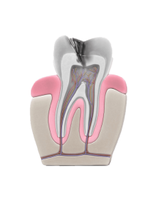 severely decayed tooth with infected dental pulp