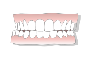 crossbite malocclusion scaled 1