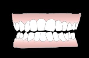 crowded teeth scaled 1