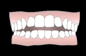 open bite malocclusion scaled 1