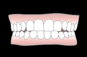 underbite malocclusion scaled 1