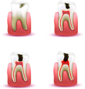progression of a cavity