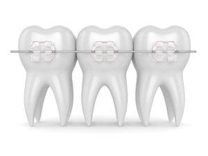teeth with ceramic clear braces