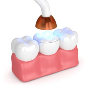 teeth with dental polymerization lamp and light cured onlay