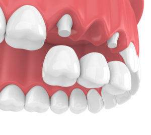 dental bridge with crowns in upper jaw
