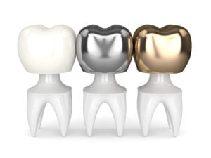 teeth with different types of dental crown