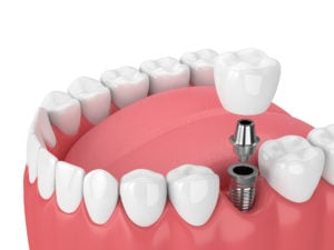 jaw with teeth and dental molar implant