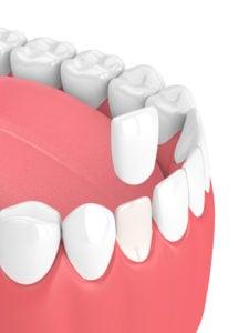 teeth with veneer