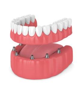 removable full implant denture