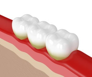 teeth with plaque and red gums from gingivitis