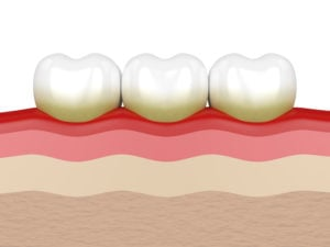 teeth with plaque and gum disease signs
