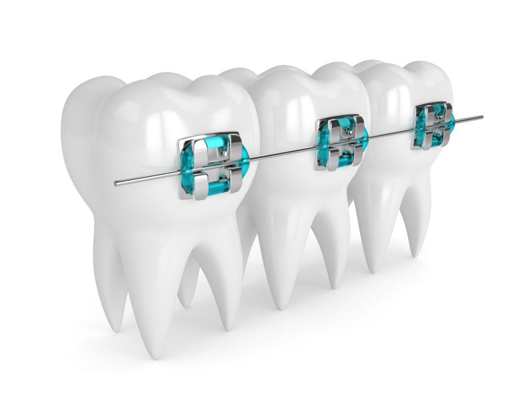 metal braces on teeth
