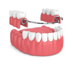 removable partial denture lower jaw