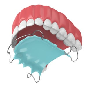 jaw with orthodontic removable retainer