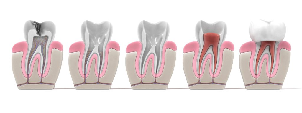 endodontic root canal procedure steps