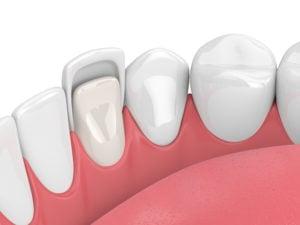 tooth in lower jaw with dental veneer