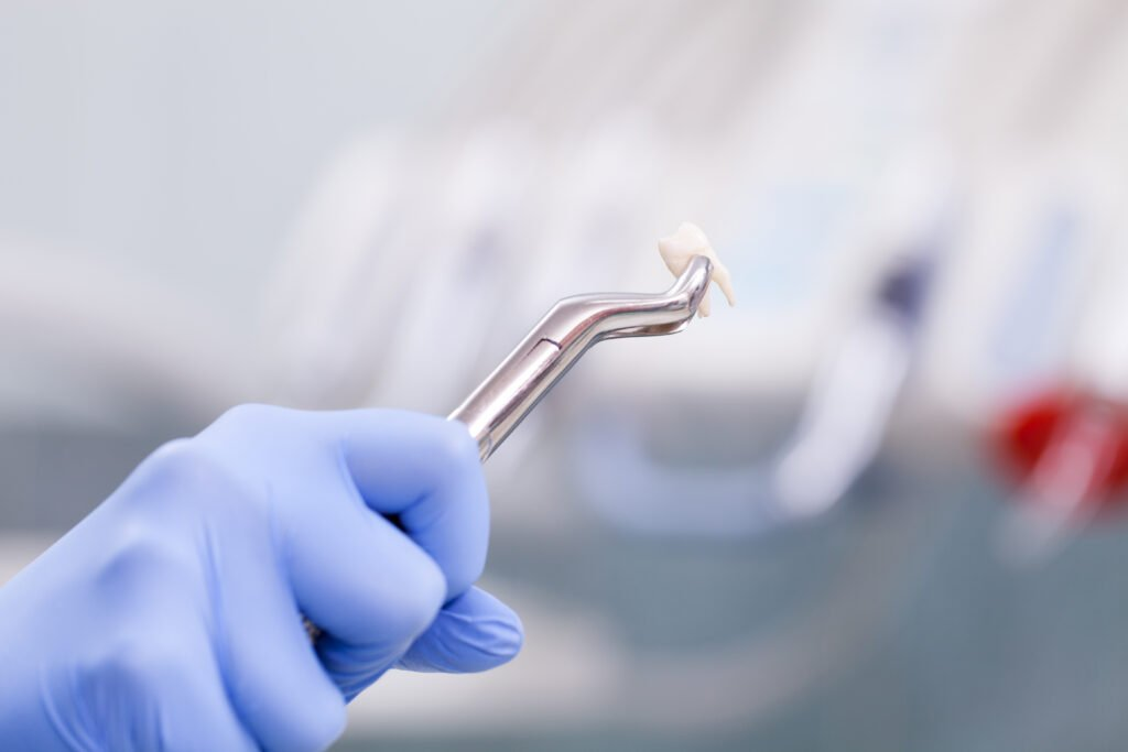 Wisdom Teeth Removal Cost Without Insurance Newmouth
