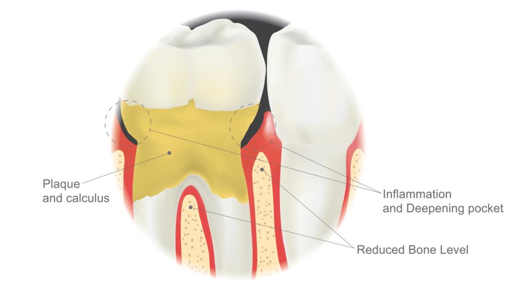 dental calculus plaque