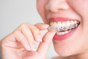 woman with invisalign aligners