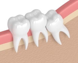 3d render of teeth with wisdom crowding. Concept of different types of wisdom teeth problems.