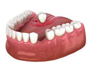 Partial removable immediate-denture
