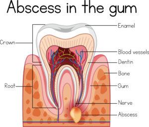 dental abscess