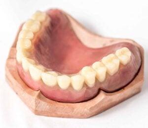 Immediate top denture