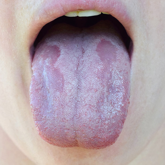Oral Thrush 2