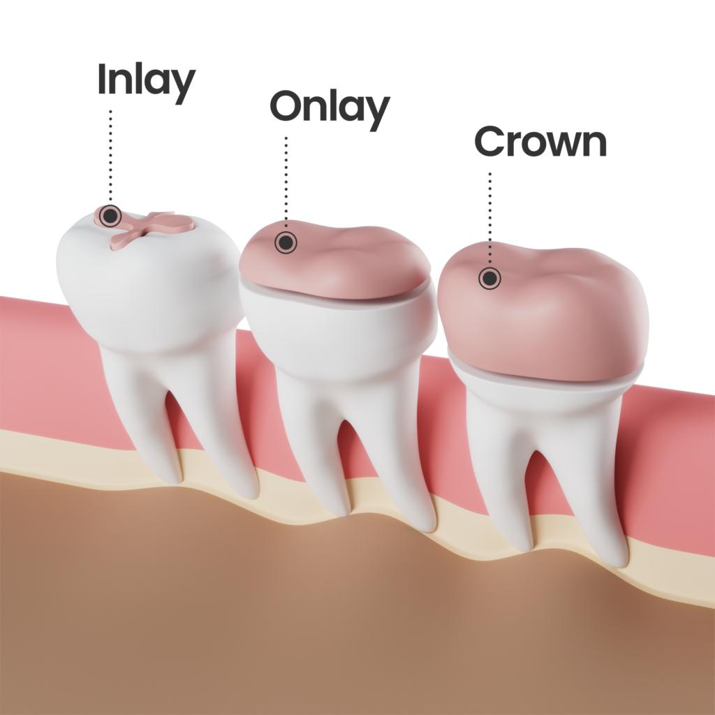 Inlay Onlay Crown wording