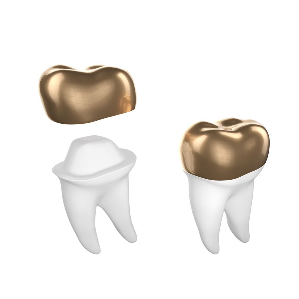 Dental Crown Gold
